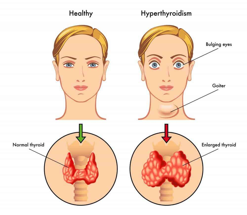 A graphic depicting the thyroids and hyperthyroidism.