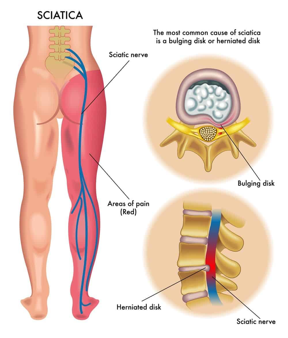 Graphic of the sciatica nerve.